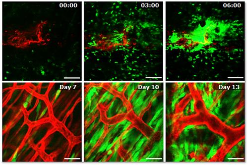 생체 내부 세포수준 변화의 IVM 영상 결과