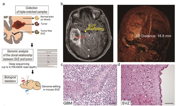 A Breakthrough for Understanding Glioblastoma: Origin Cells for Deadly Brain Tumors Identified 이미지2