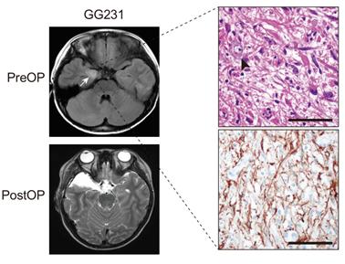 수술전 (PreOP) 과 수술후 (PostOP) 의 신경절 교세포종의 MRI사진과 이형성이 동반된 신경세포가 있는 병리 조직 사진