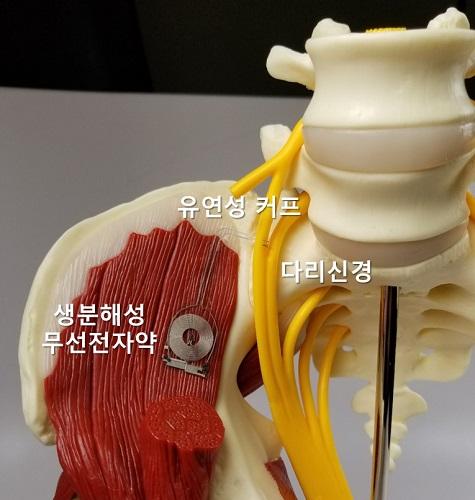 다리신경 모델에 적용된 생분해성 무선 전자약의 삽입 모형도