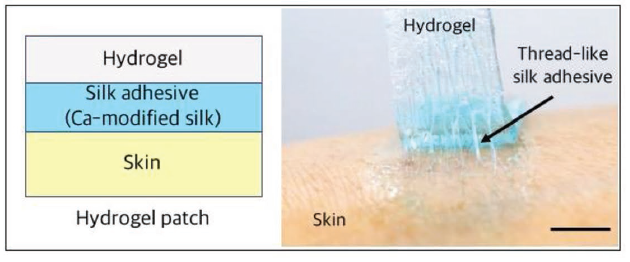 Figure 1. Schematic and photograph of a hydrogel patch adhered on the human skin through the silk adhesive