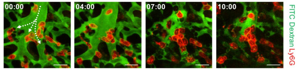 KAIST Identifies the Cause of Sepsis-induced Lung Injury 이미지3